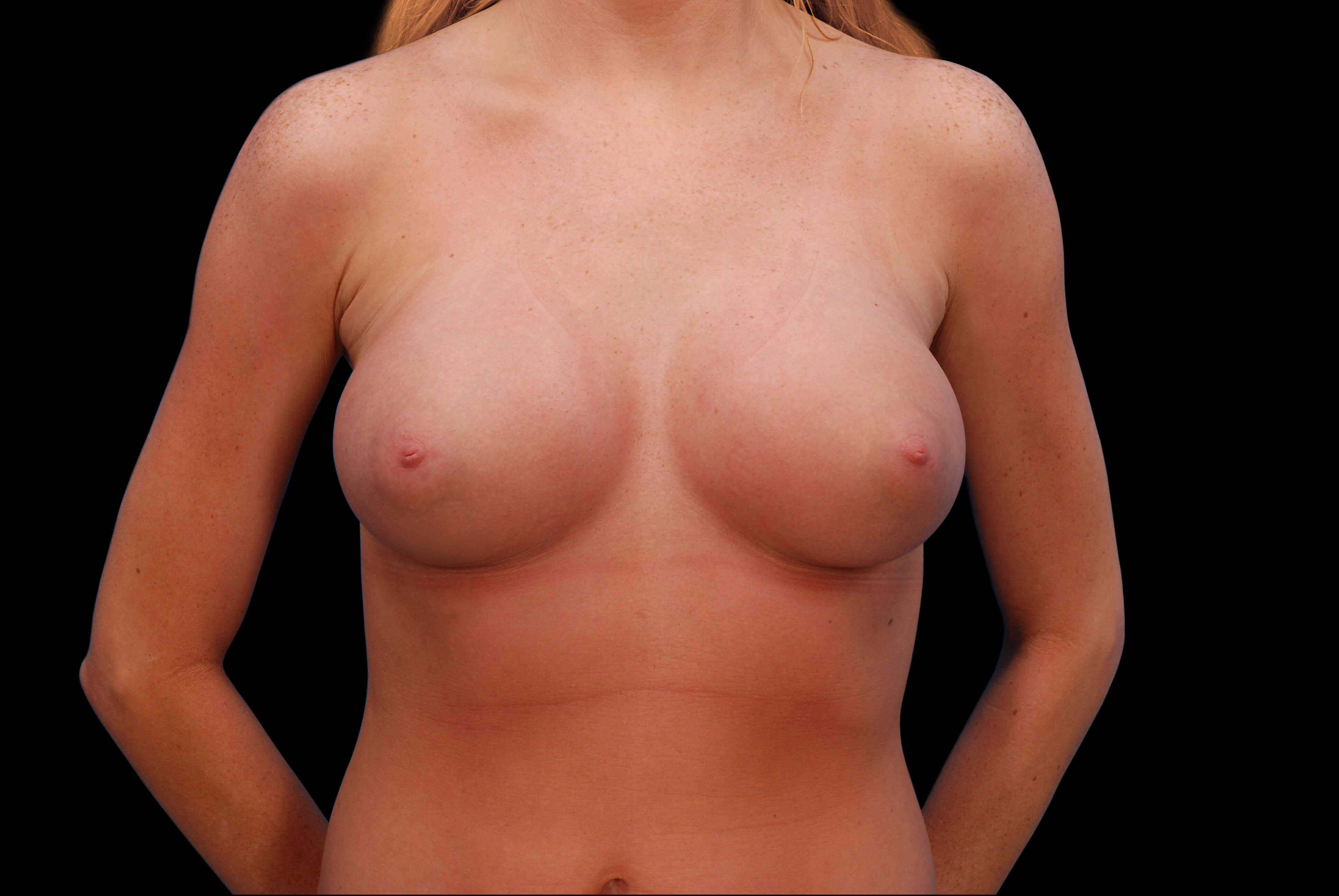 Breast Augmentation Surgery After