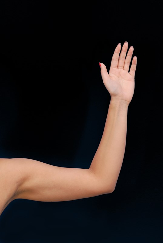 Upper Arm Liposuction After