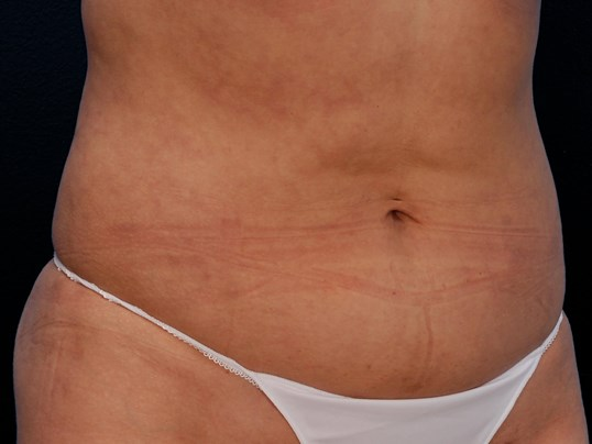 Abdomen, Flanks & Hips Lipo After