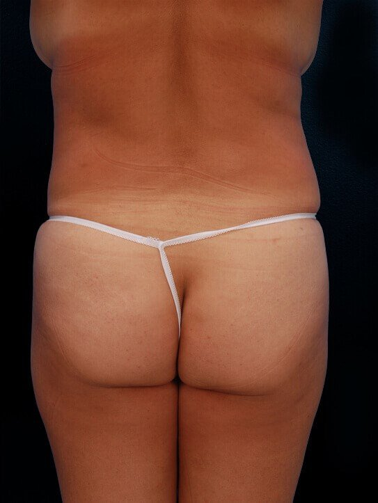Abdomen and Flank Liposuction After