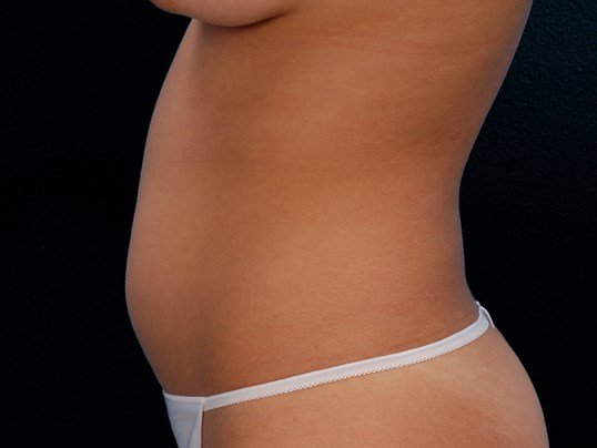 Hips and Thighs Liposuction Before