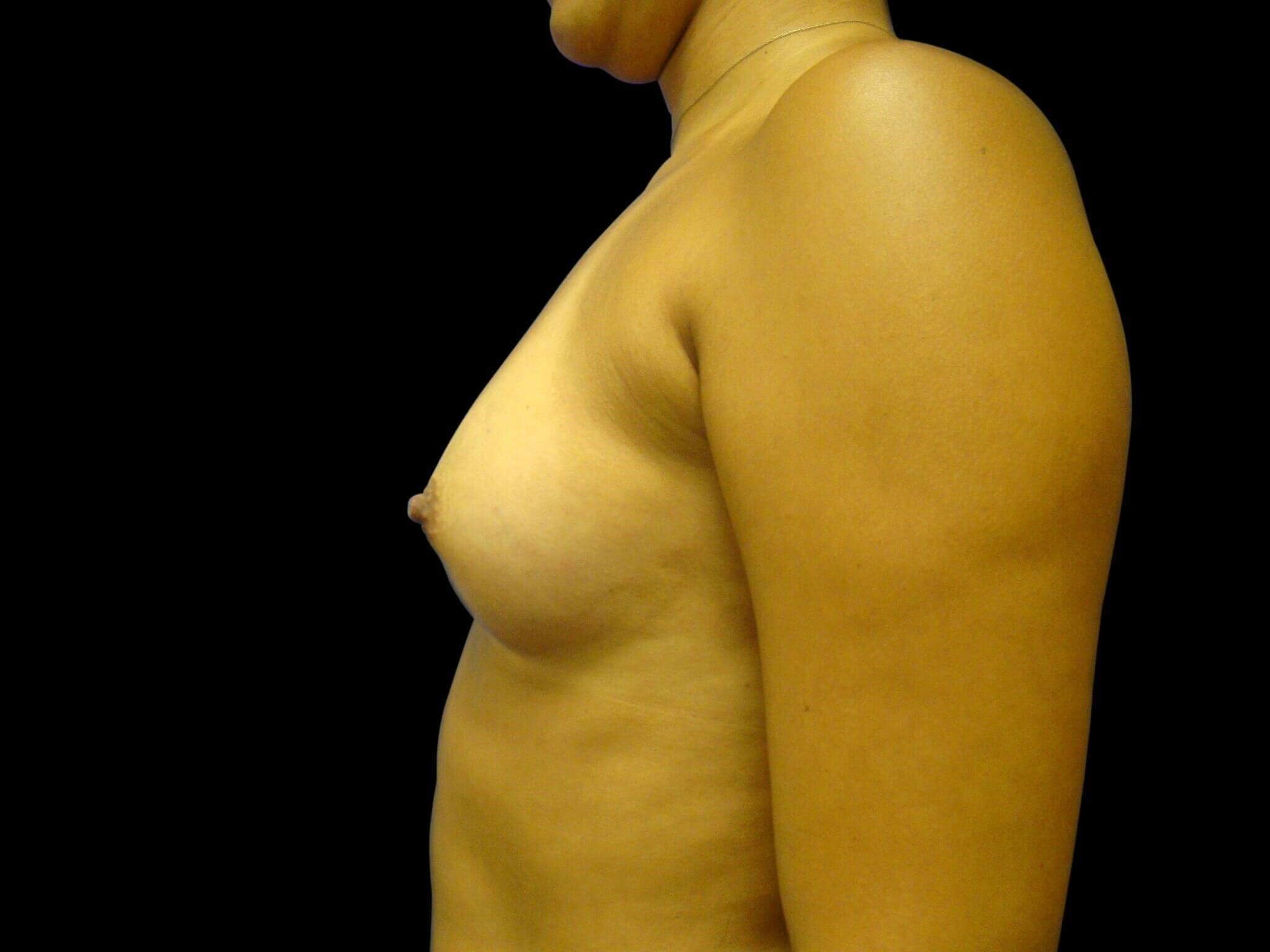 Breast Augmentation Surgery Before