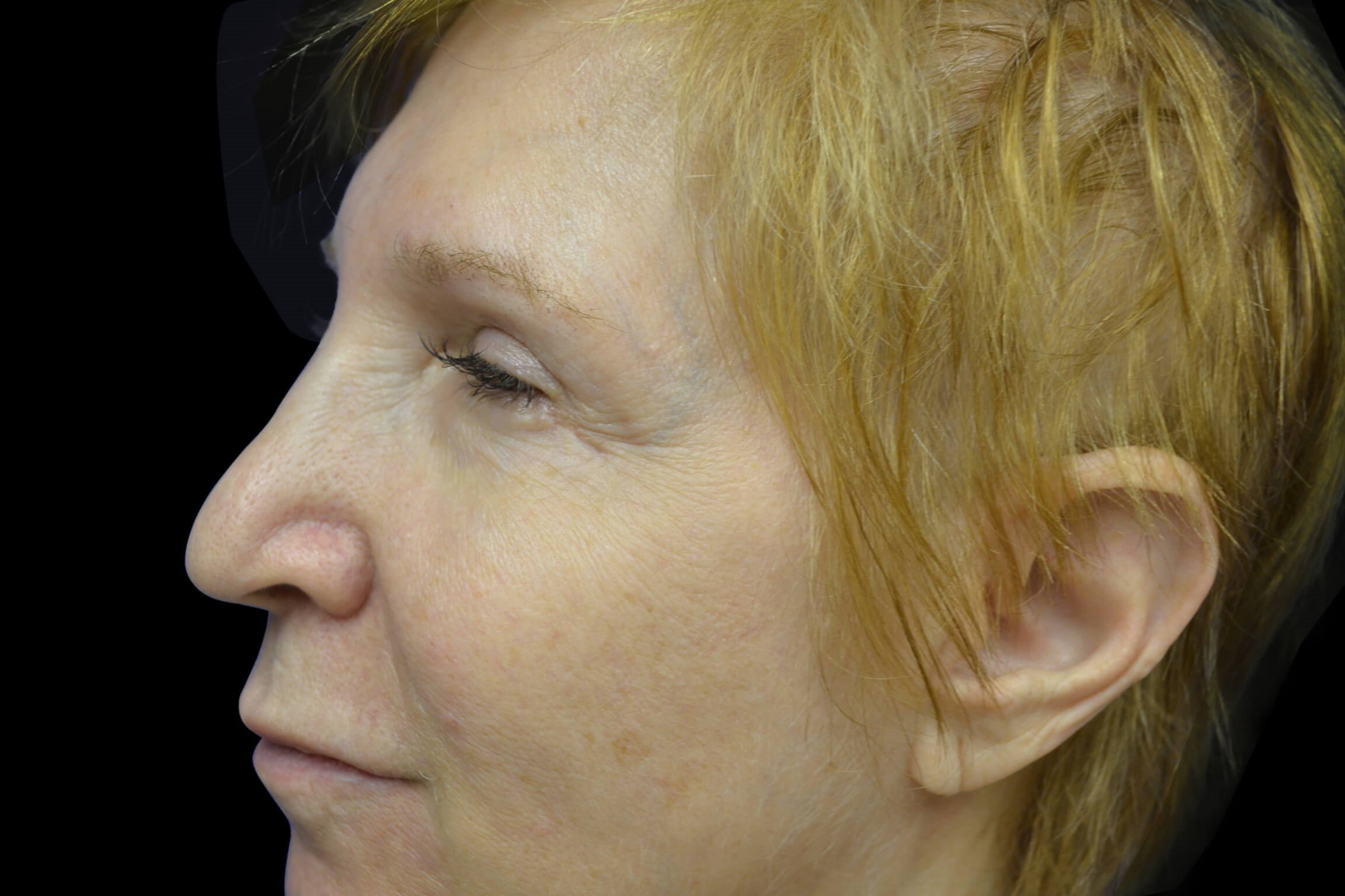 Eyelid Surgery Blepharoplasty After