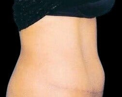 Tummy Tuck-  Abdominoplasty After