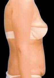 Tummy Tuck-  Abdominoplasty Before