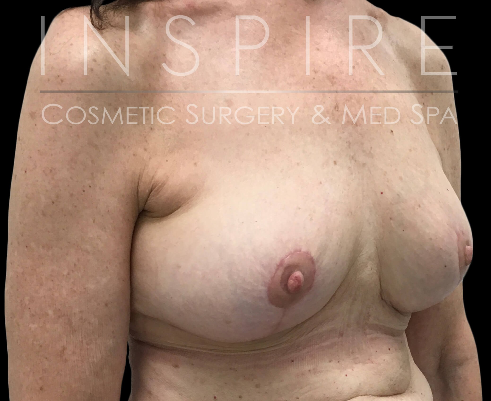 Implant Removal & Breast Lift After
