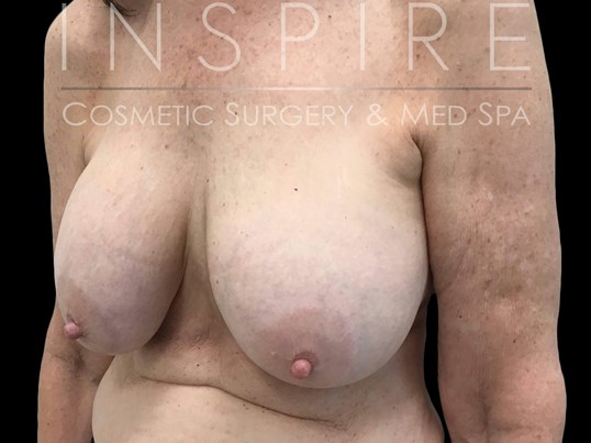 Implant Removal & Breast Lift Before