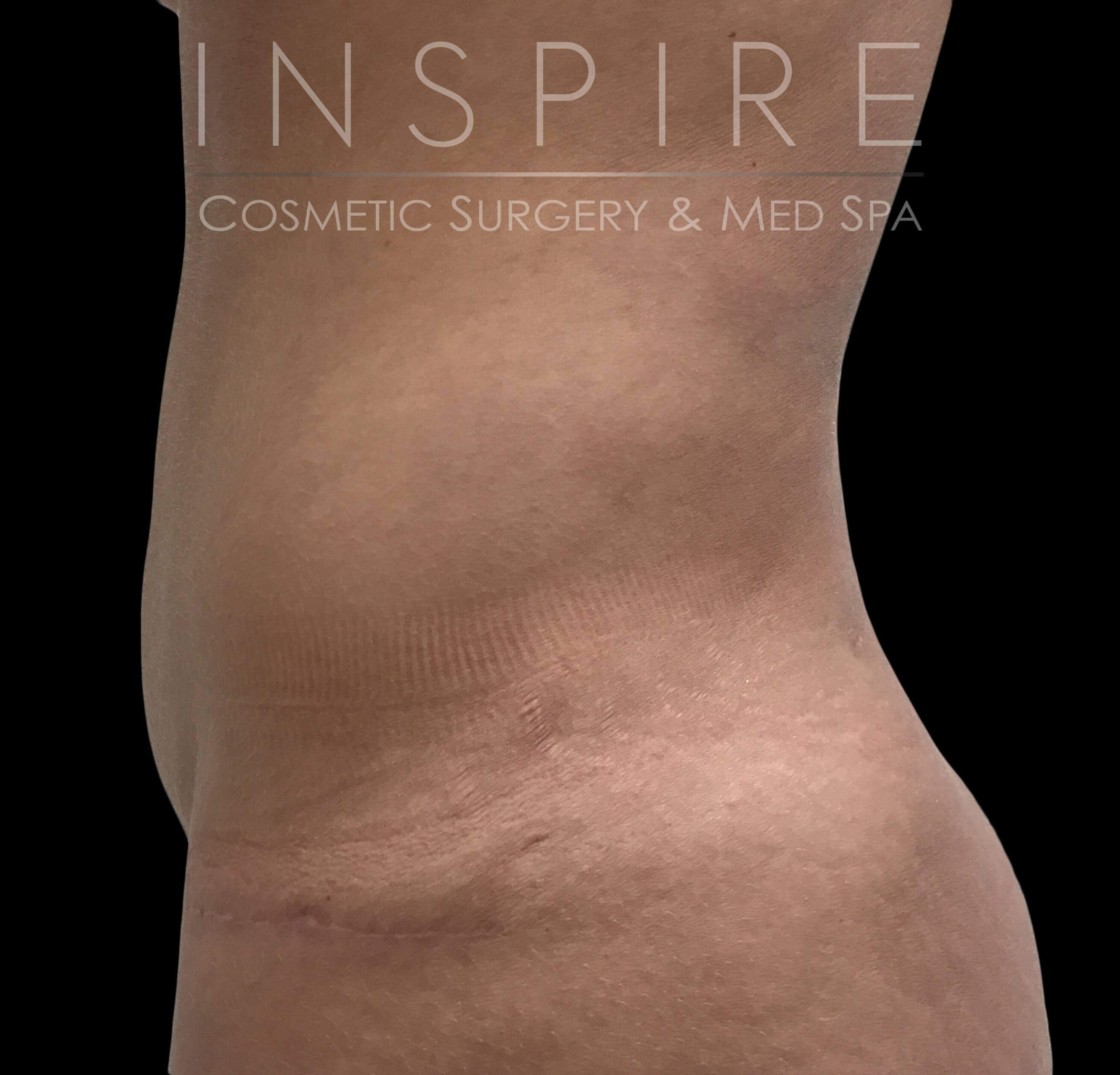 Tummy Tuck -  Abdominoplasty After