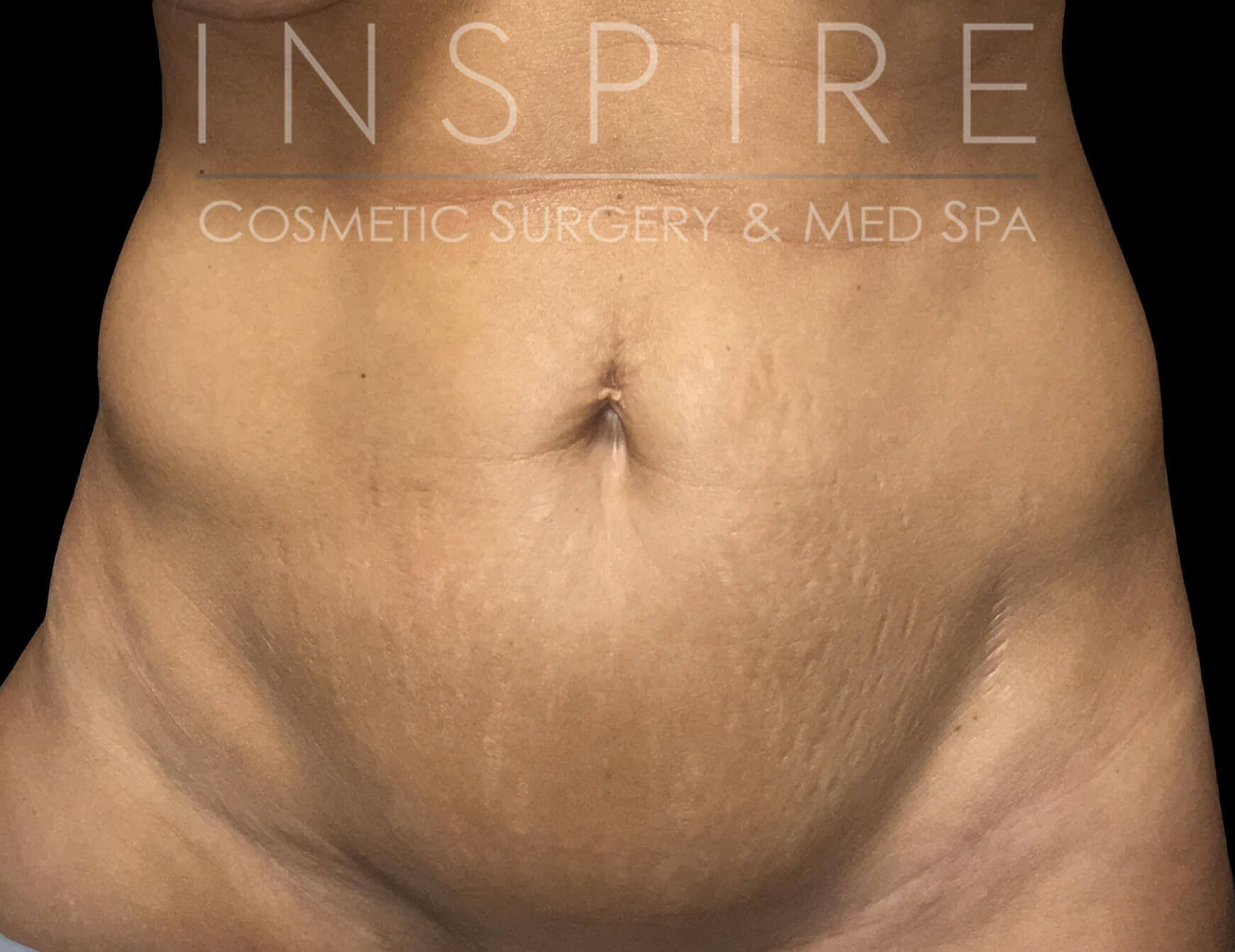 Tummy Tuck -  Abdominoplasty Before