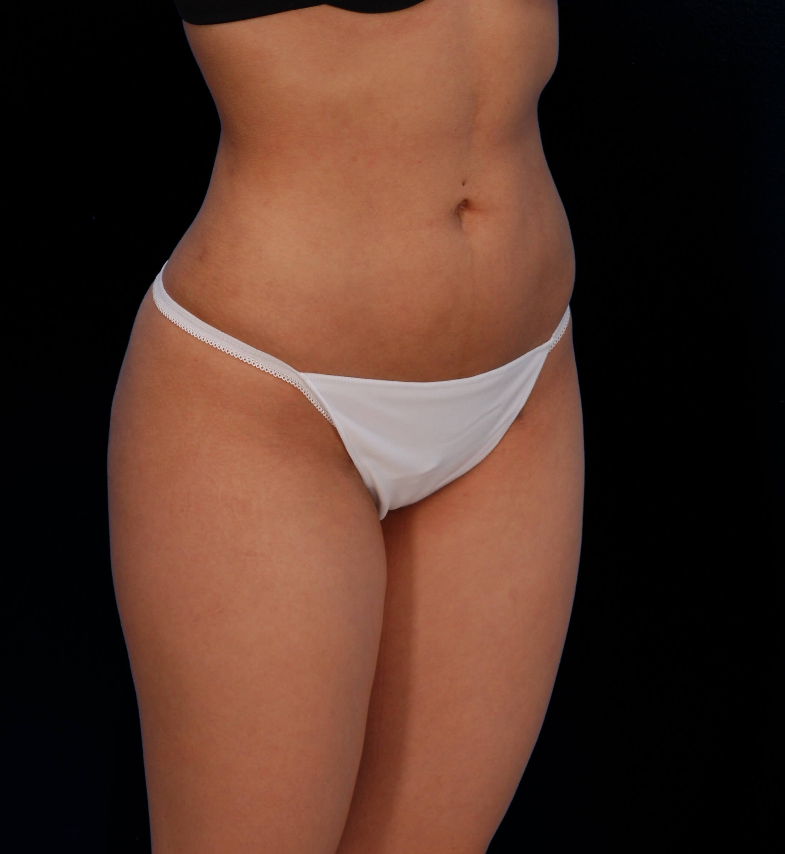 Hips and Thighs Liposuction After