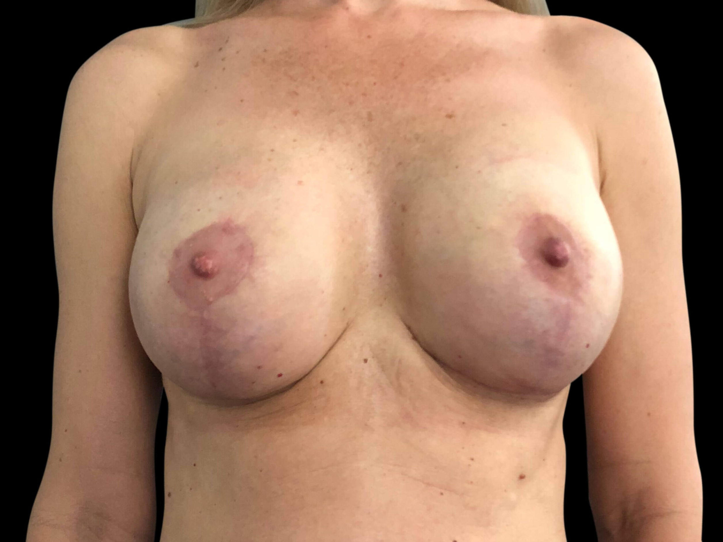 Breast Lift & Implant Exchange After