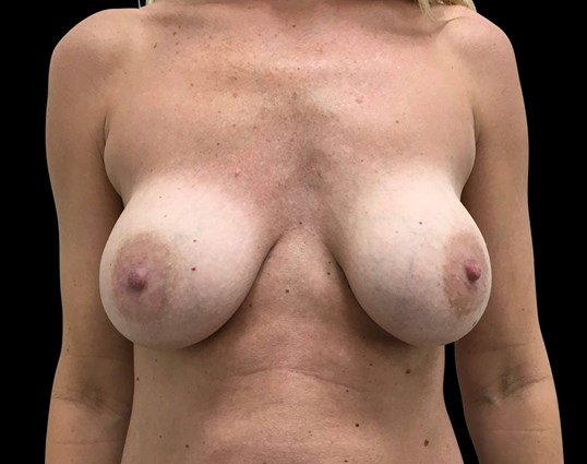 Breast Lift & Implant Exchange Before