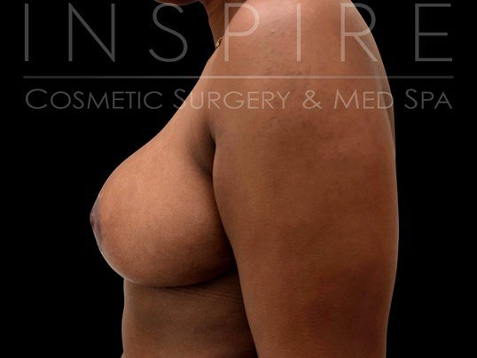 Breast Reduction & Lift After