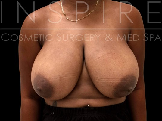 Breast Reduction & Lift Before