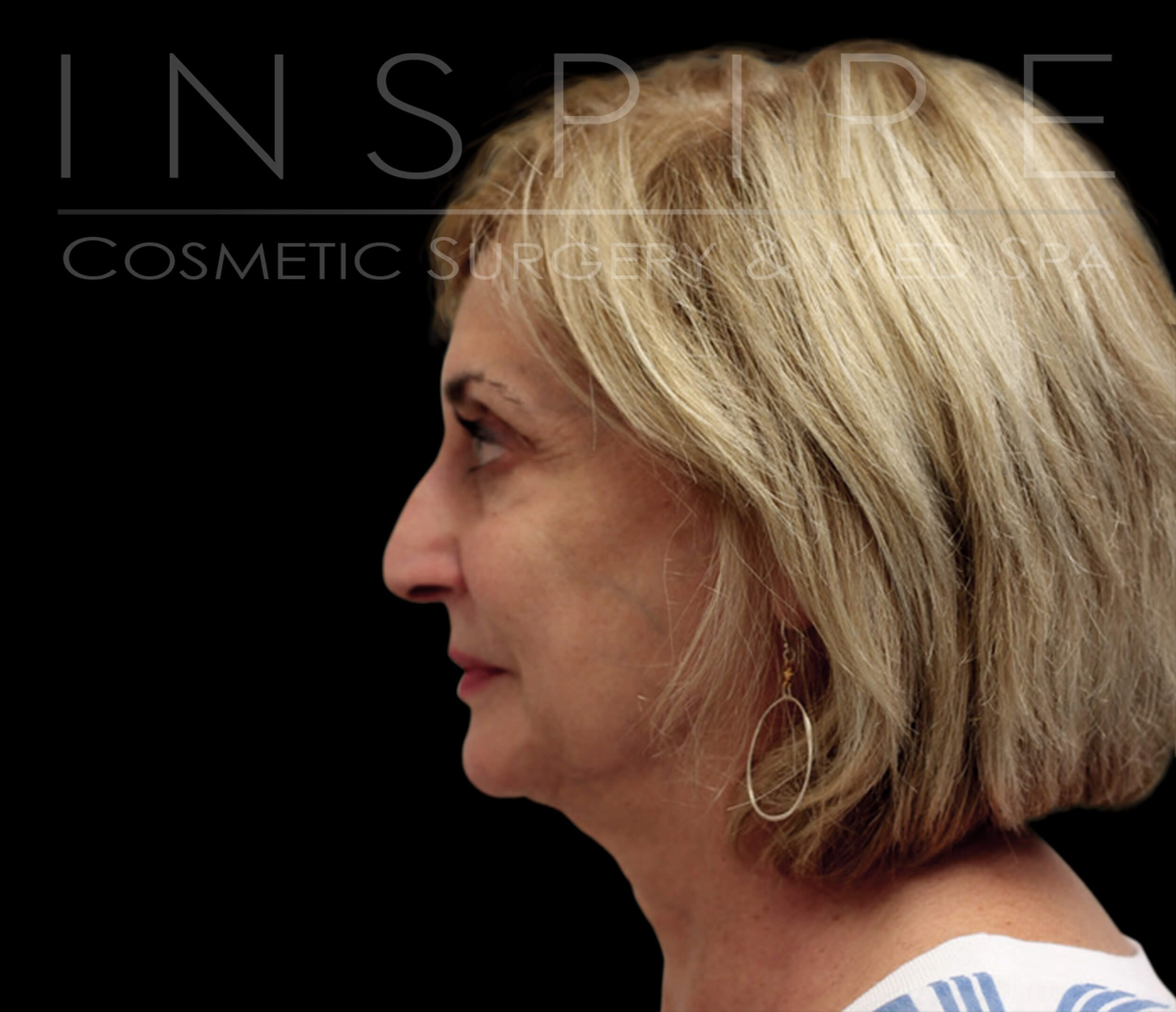Facelift Before & After Before