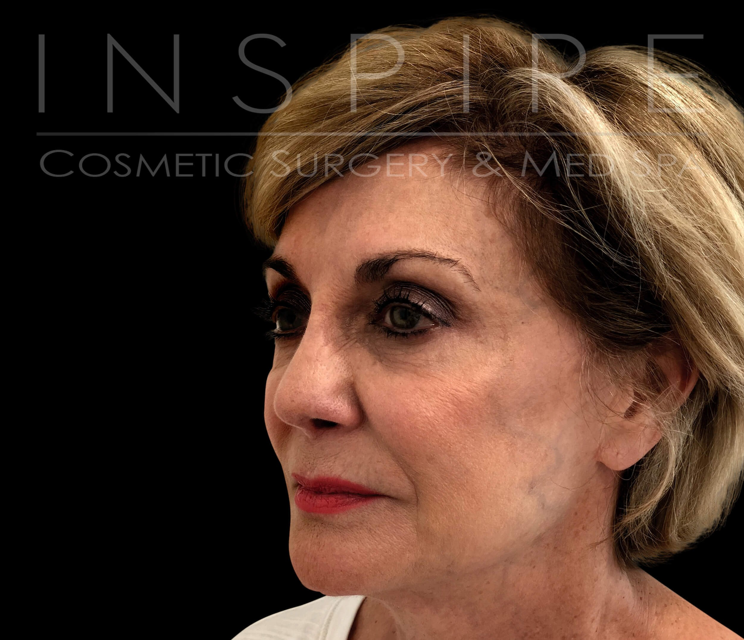 Facelift Before & After After