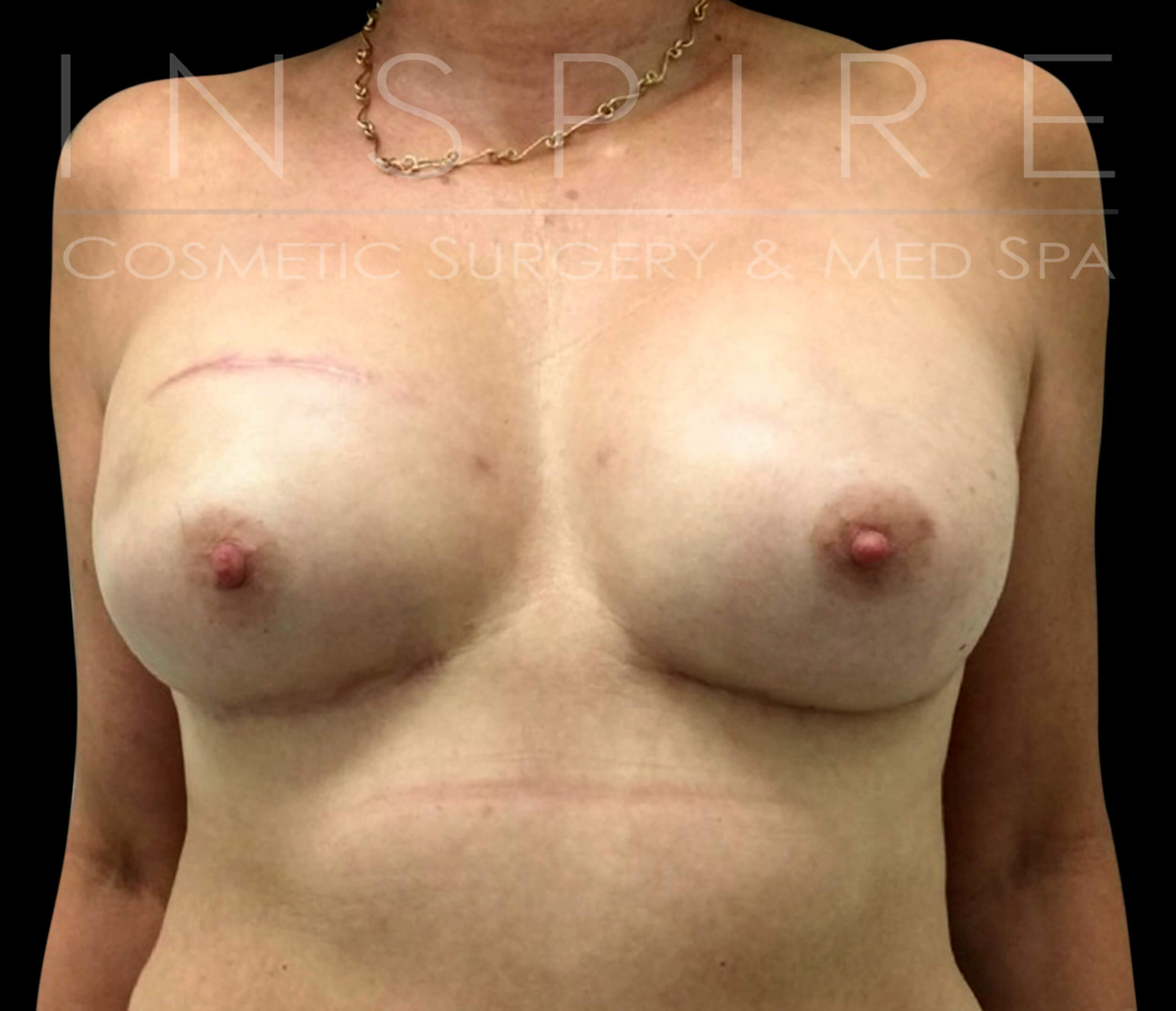 Nipple Sparing Mastectomy After