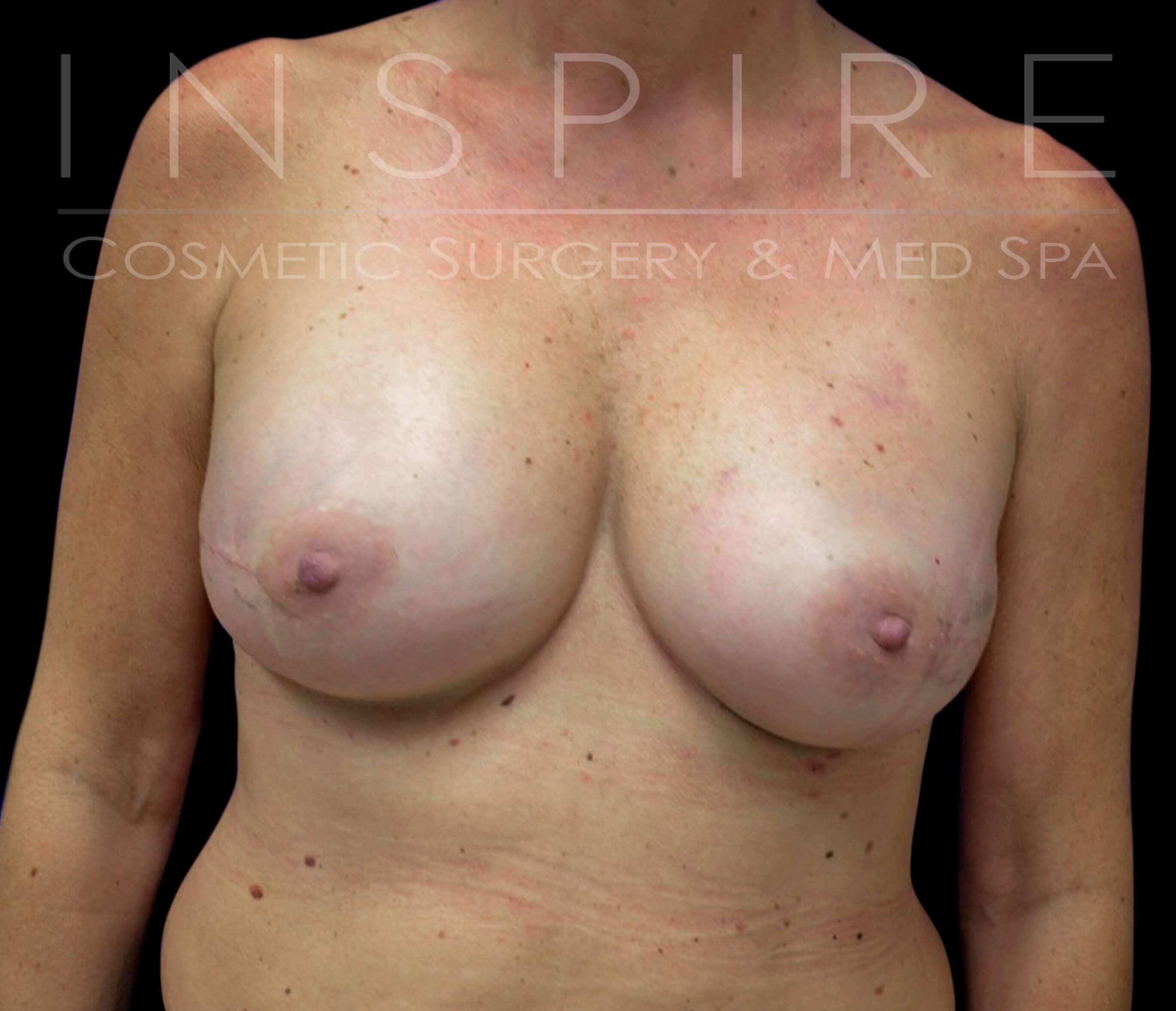 Bilateral Nipple Sparing After