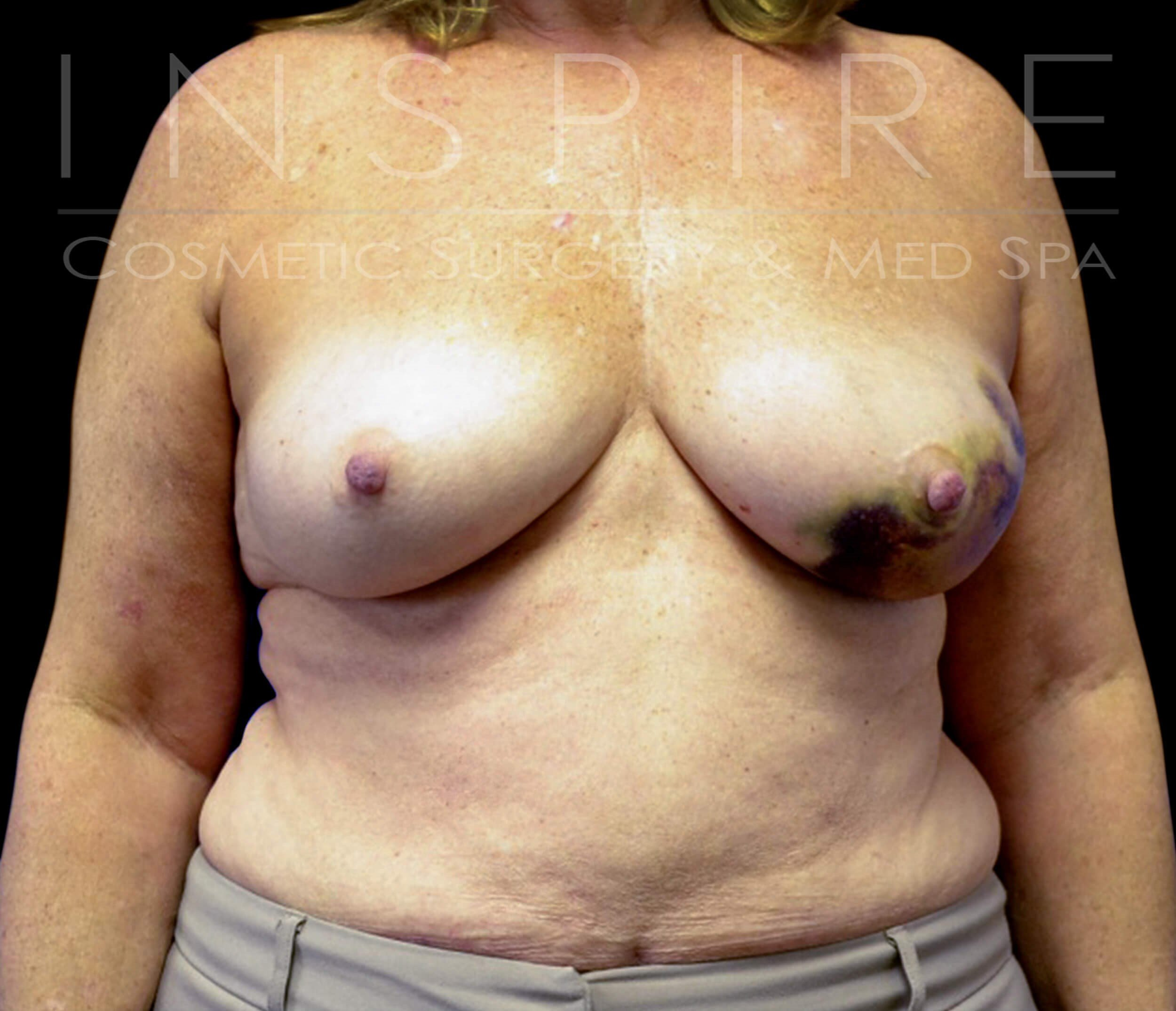 Nipple Sparing Mastectomy Before