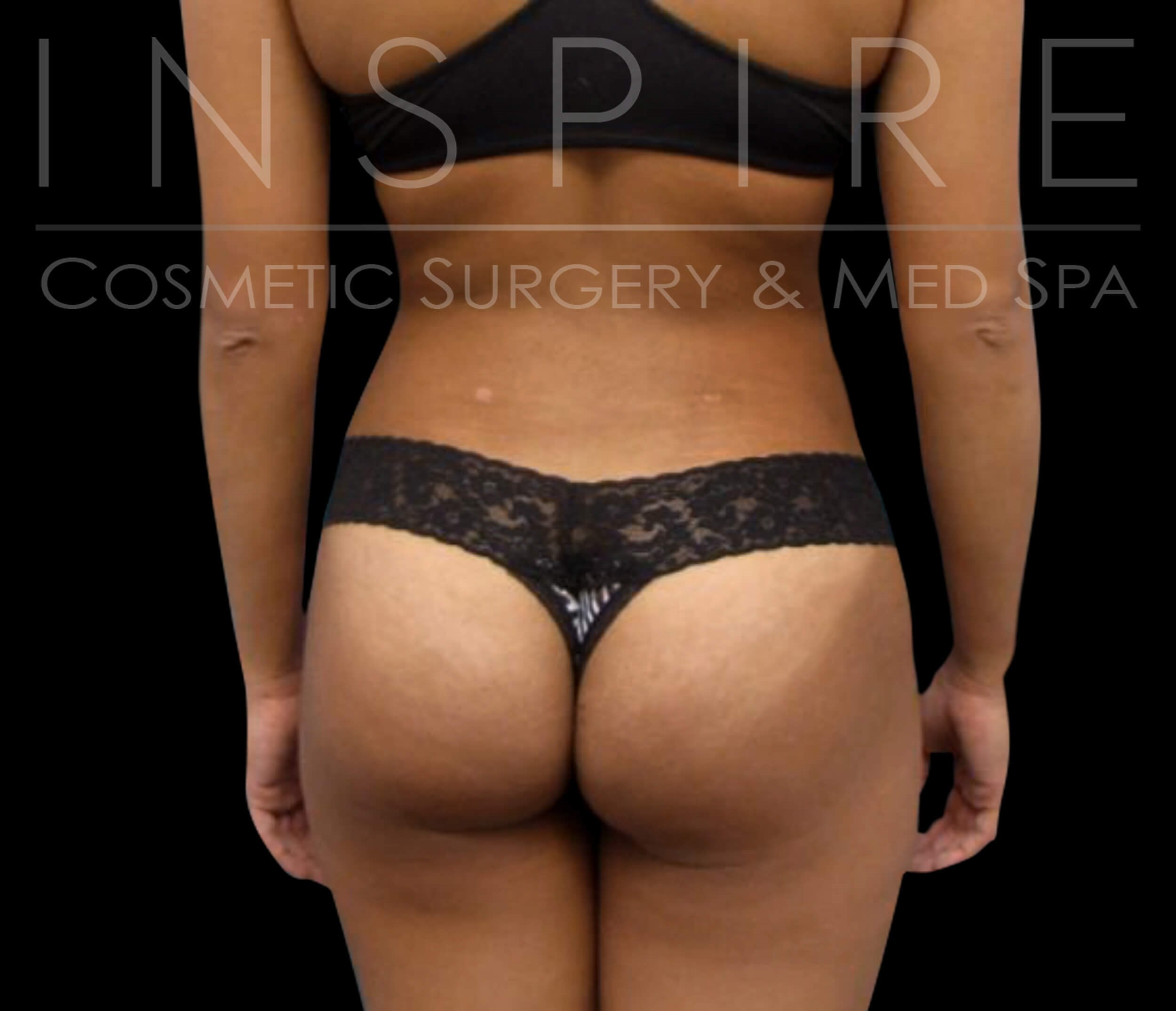 BBL Liposuction Fat Transfer After