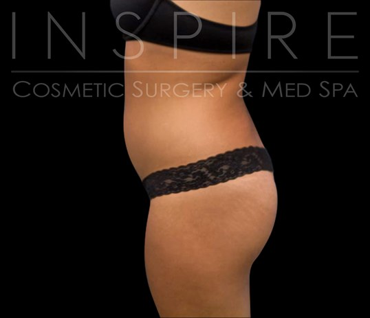 BBL Liposuction Fat Transfer Before