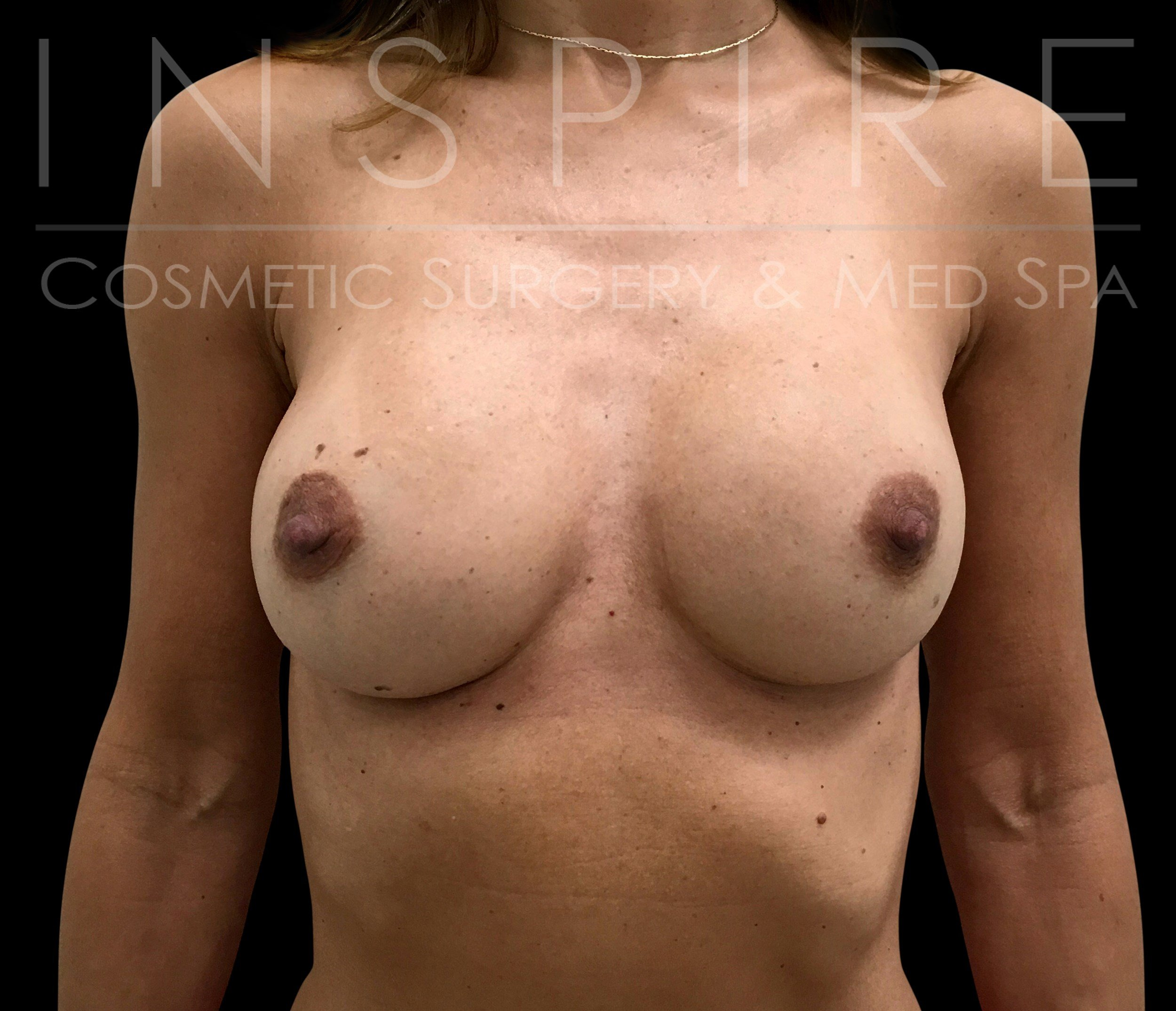 Breast Implant Exchange After