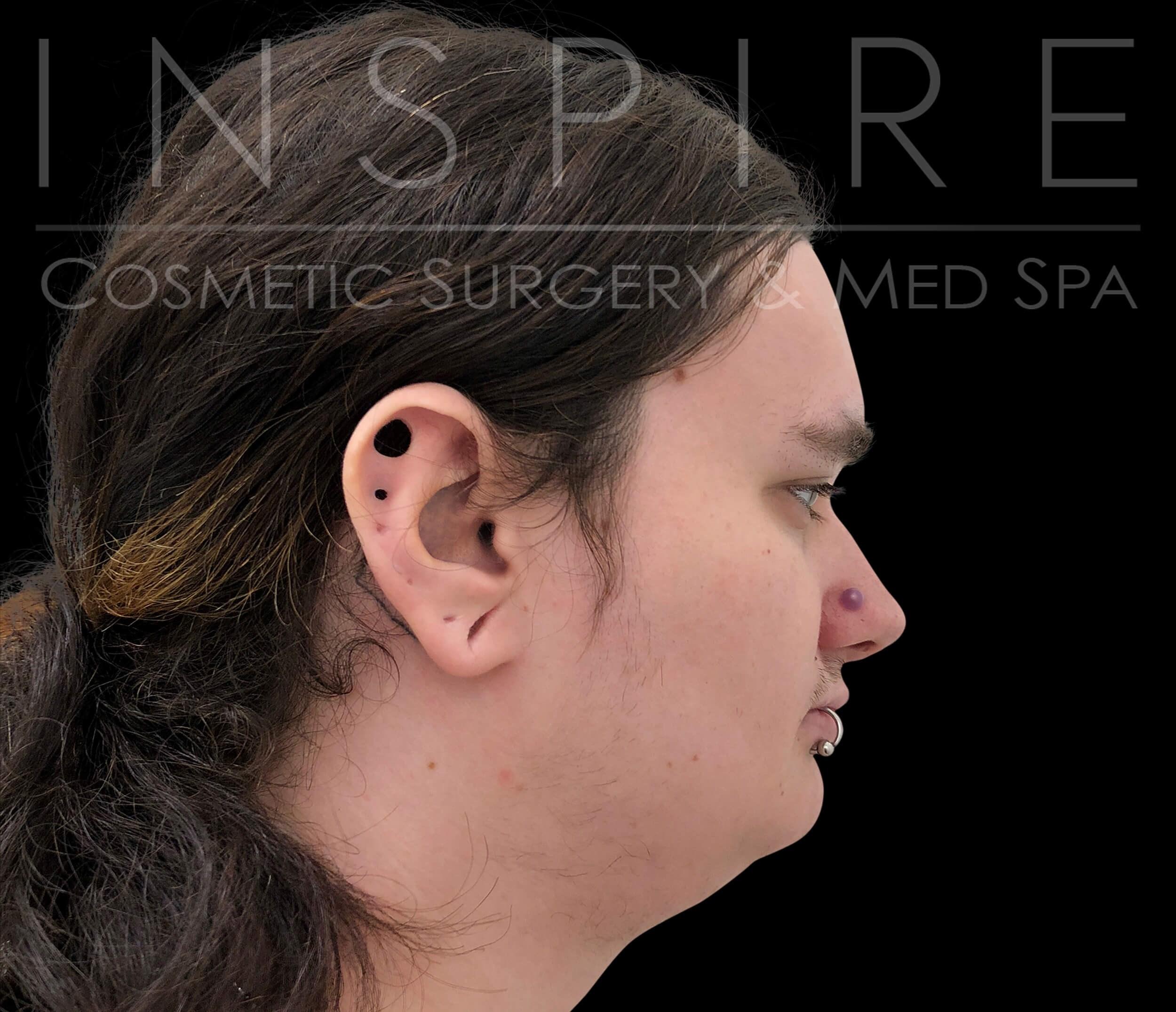 Cosmetic facial miami surgery