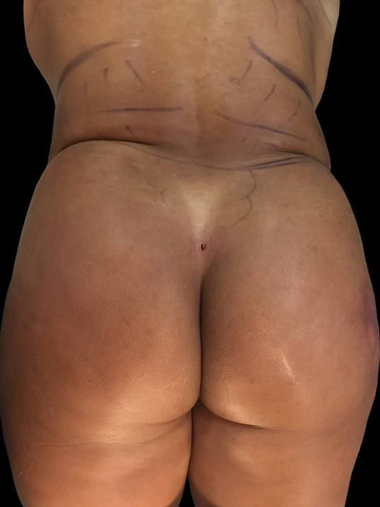 Liposuction 360 BBL After