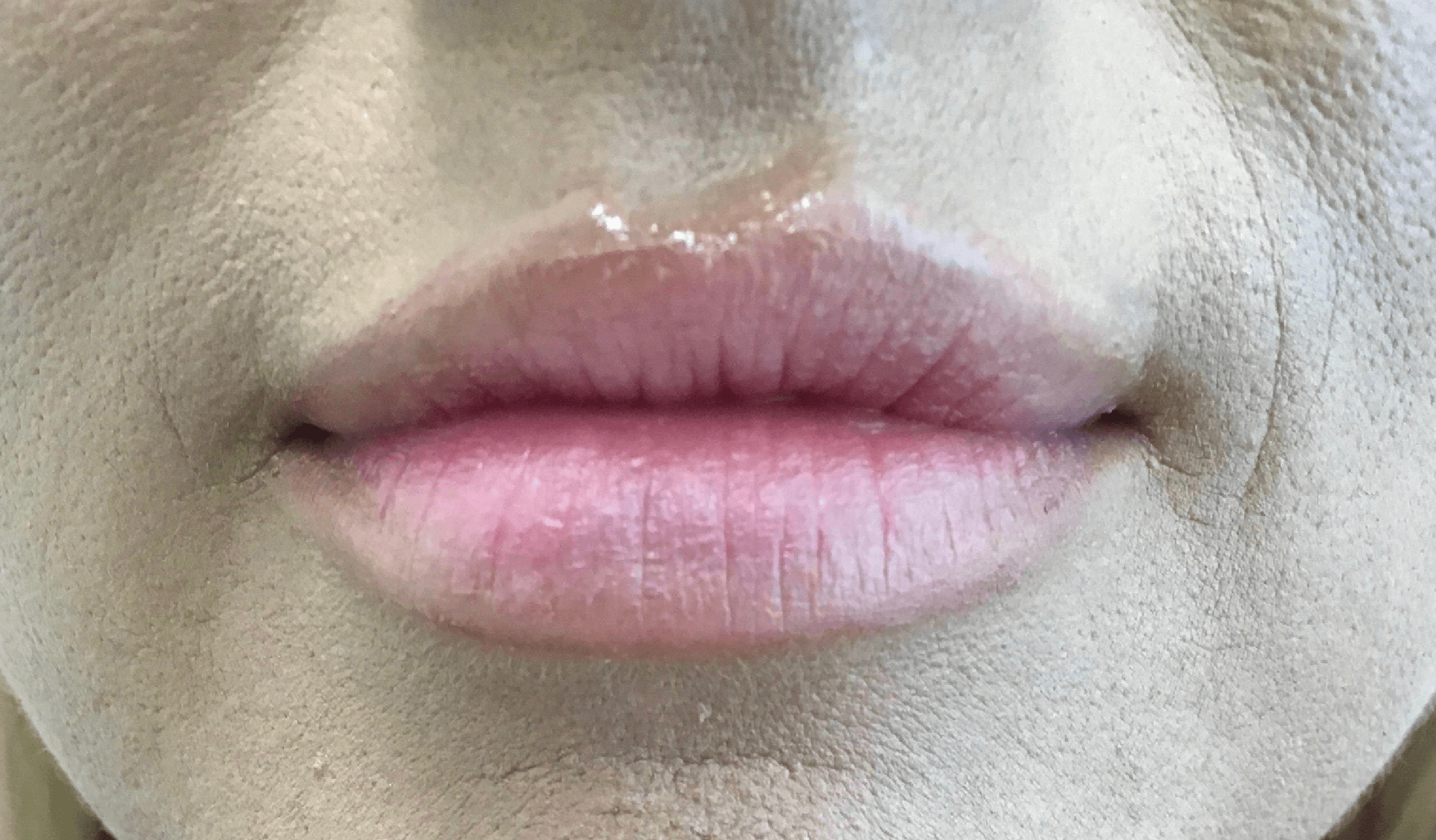 Juvederm Lips - Dermal Filler Before