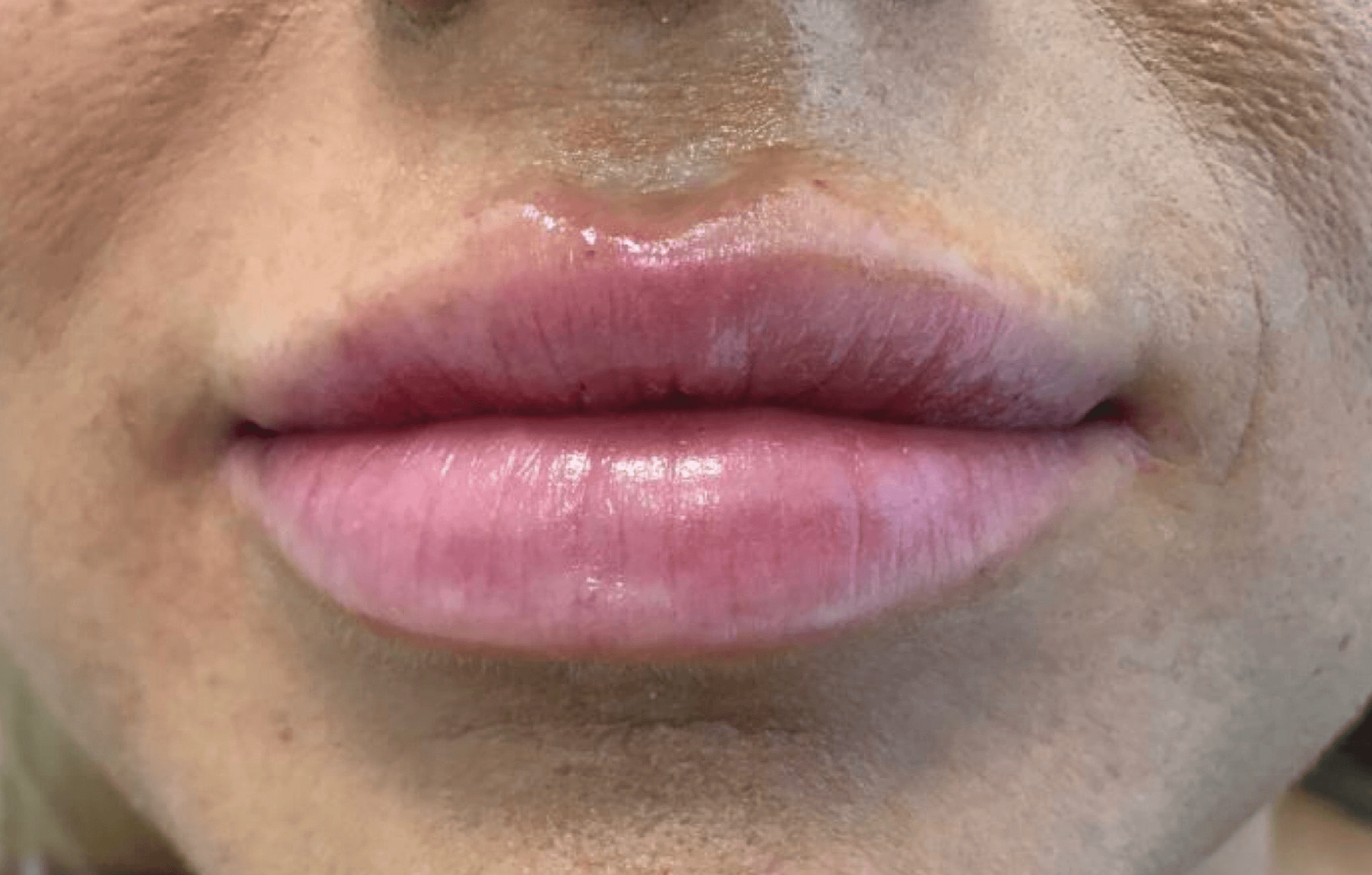 Juvederm Lips - Dermal Filler After