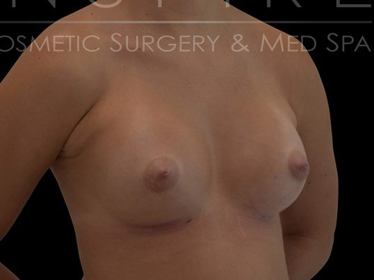 Breast Augmentation Silicone After