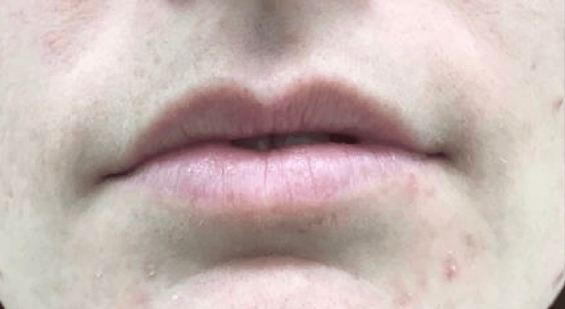 Juvederm Lip Filler Before