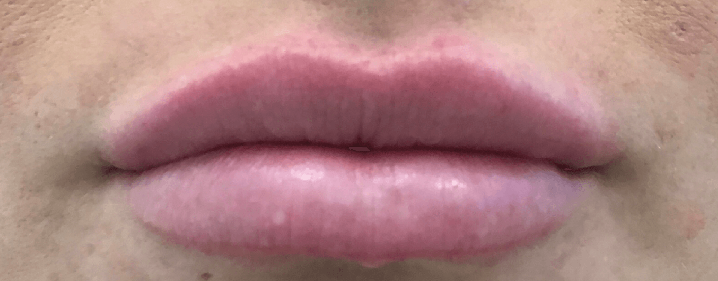 Juvederm Lip Filler After