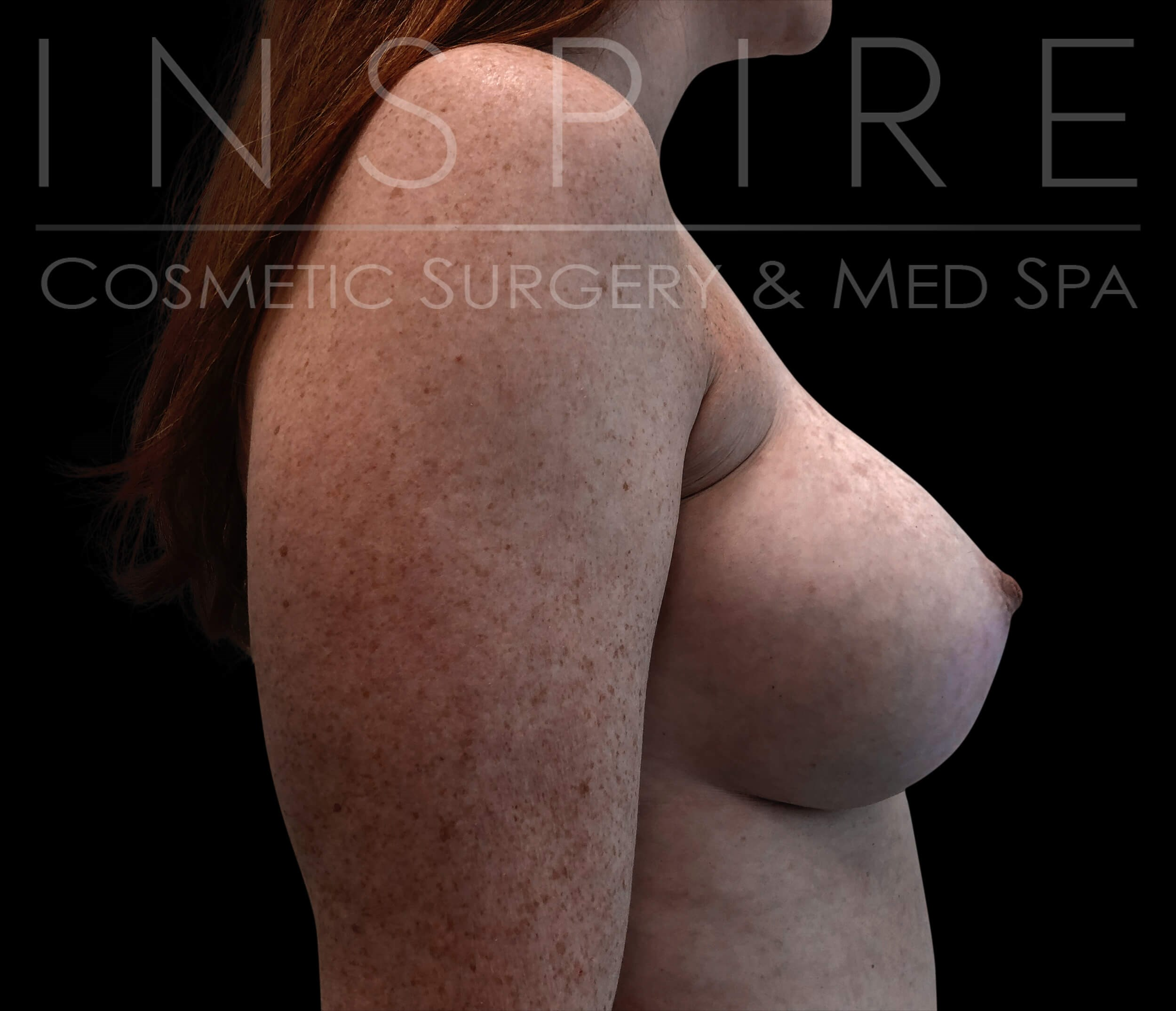 Breast Augmentation 450cc After