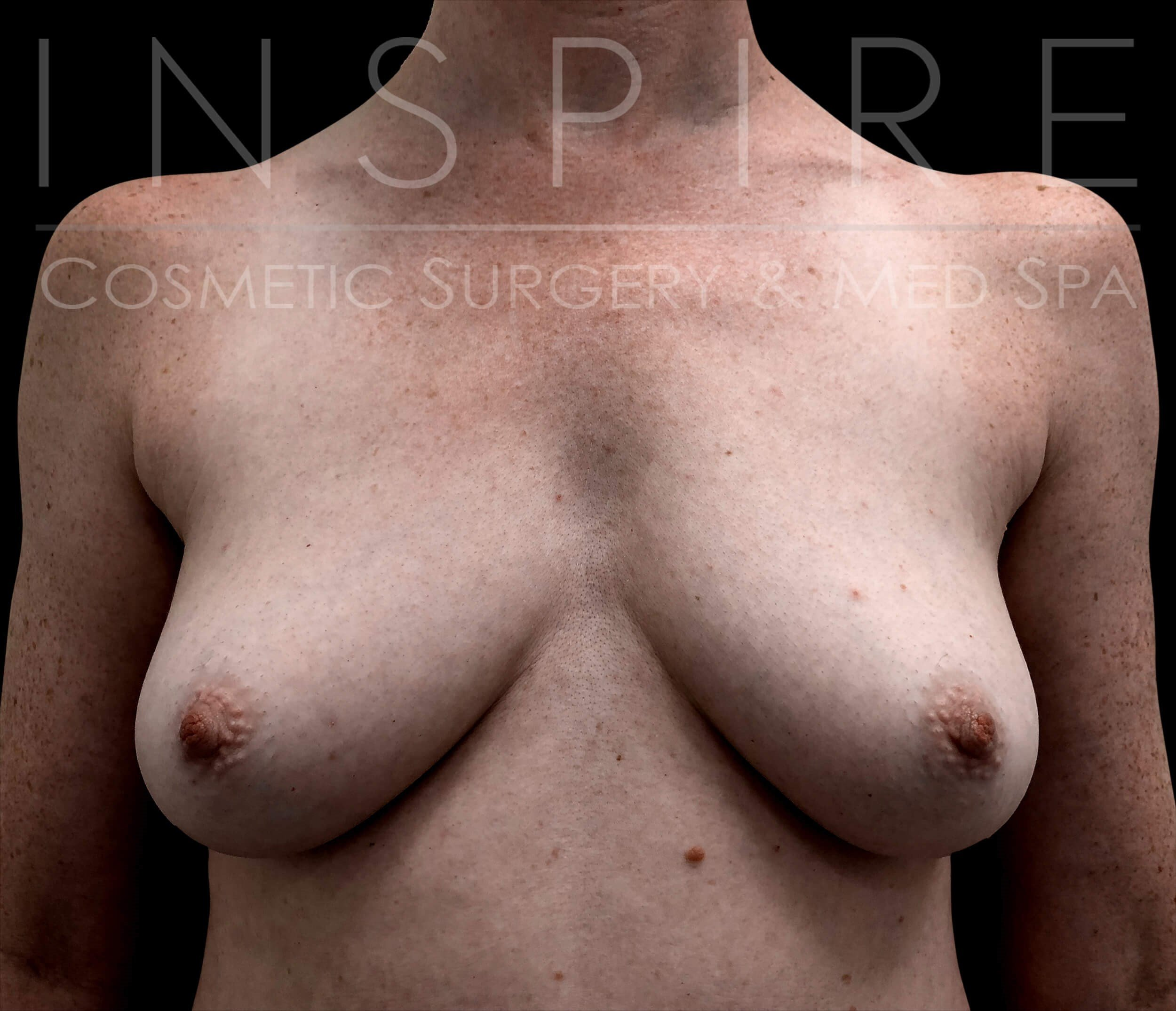 Breast Augmentation 450cc Before