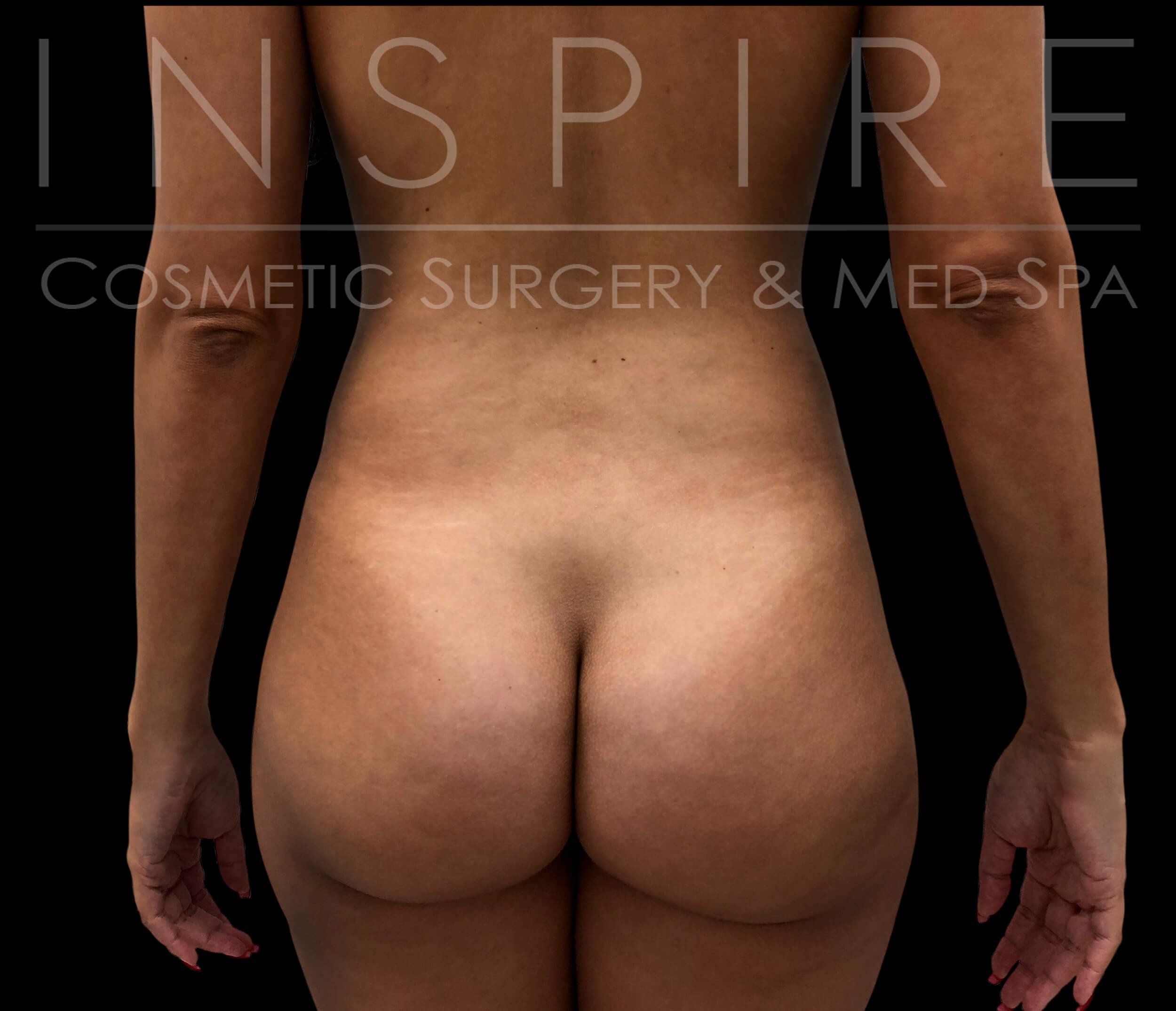 Liposuction BBL Before