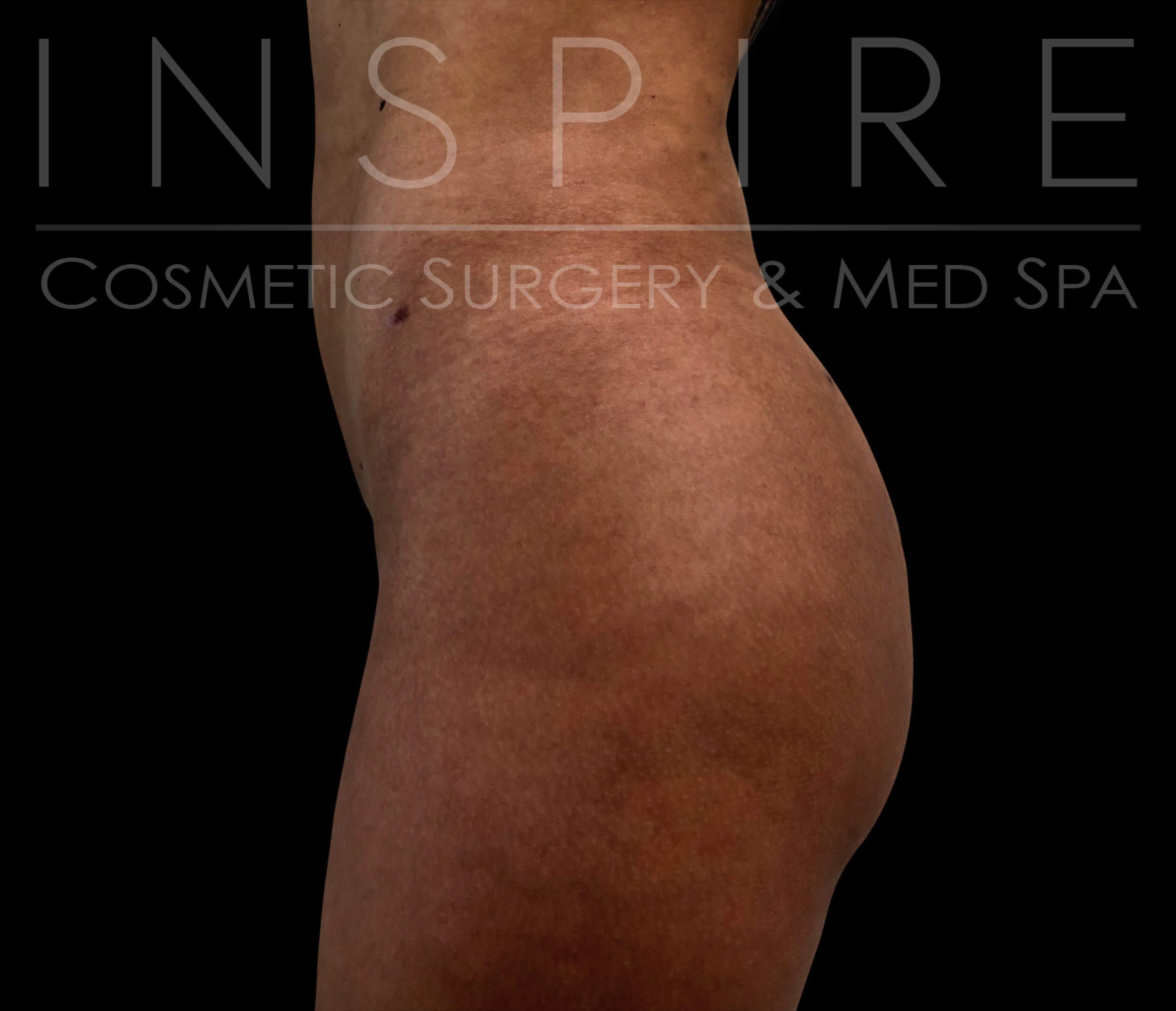 Liposuction BBL After