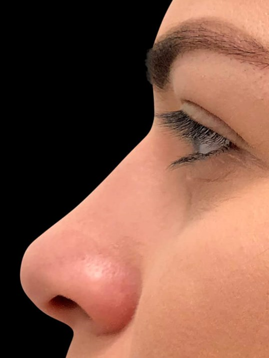 Rhinoplasty Nose Surgery Before