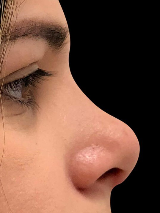 Rhinoplasty Nose Surgery After