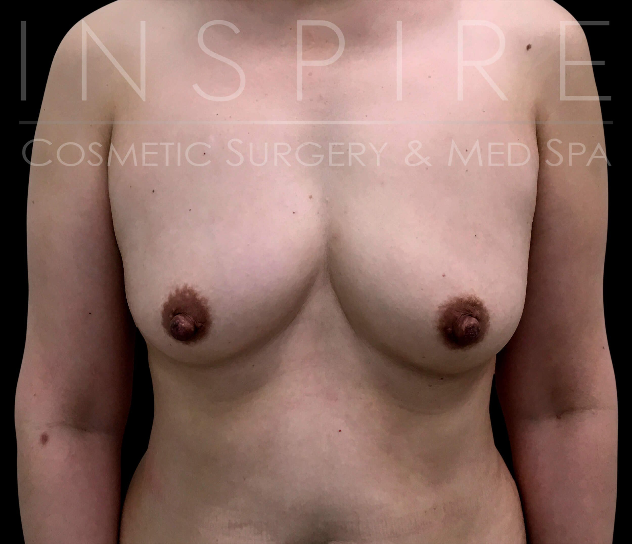 Breast Augmentation Silicone Before