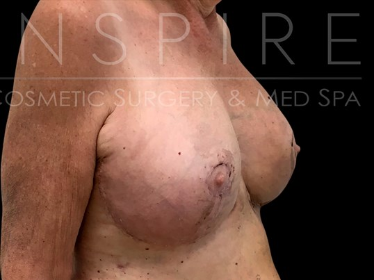 Breast Lift 3 wk post-op After