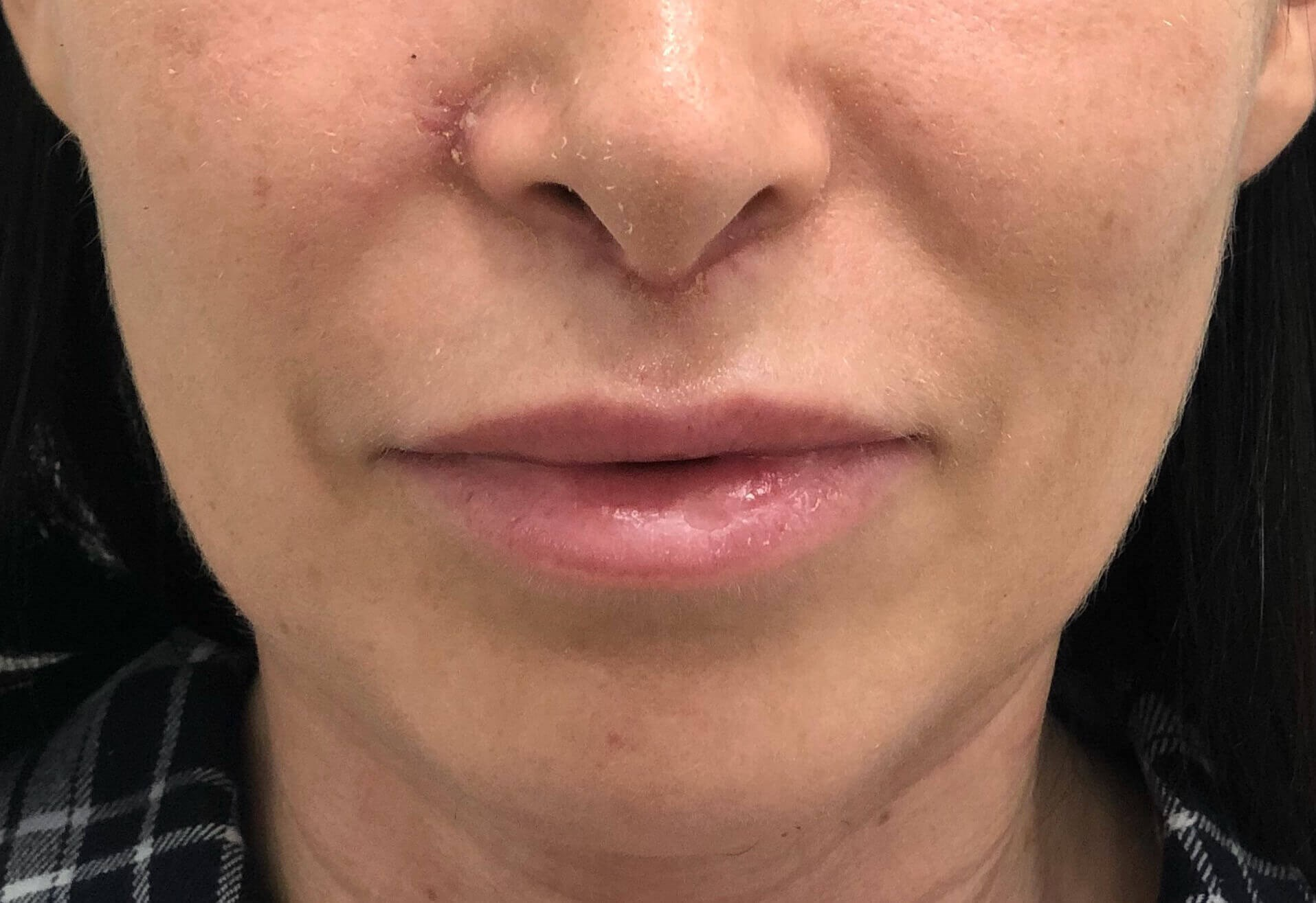 Surgical Lip Lift After