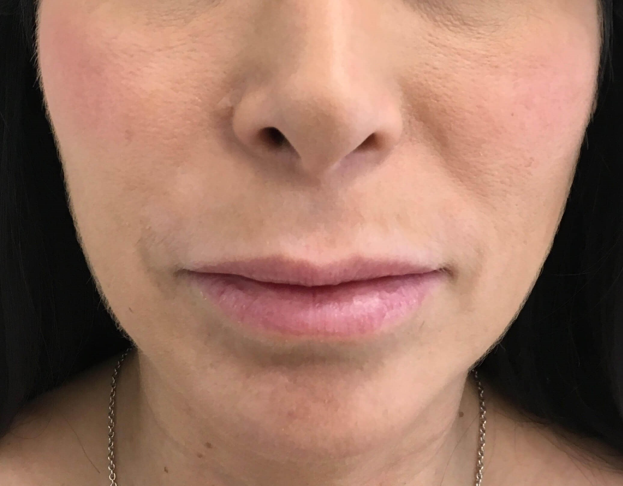 Surgical Lip Lift Before