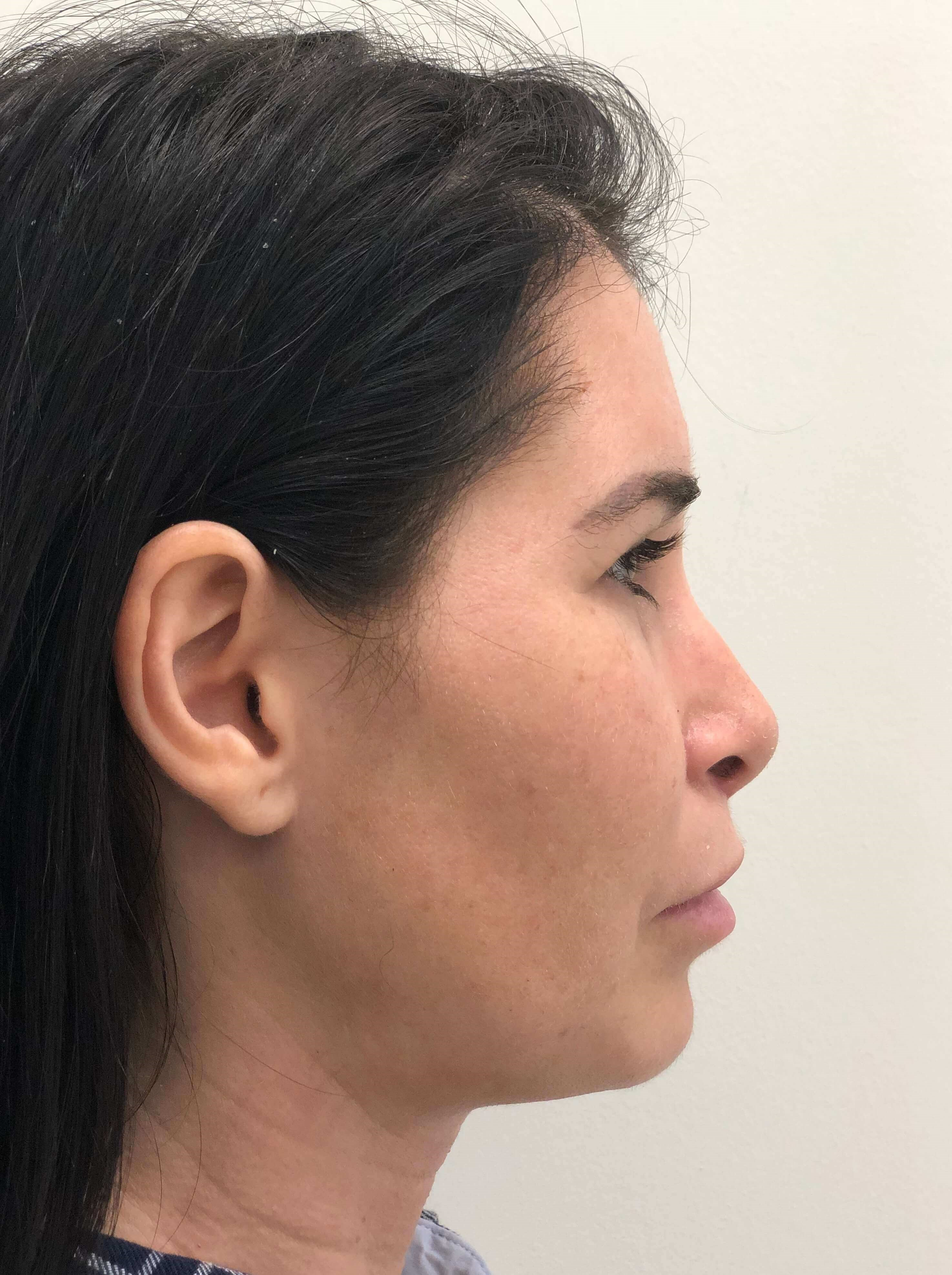 Liposuction of the Chin After