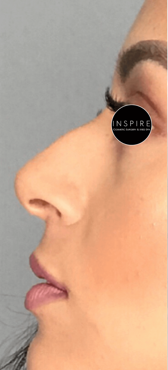 Liquid Rhinoplasty Before
