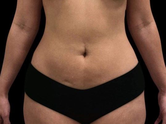 Abdominoplasty with Renuvion Before