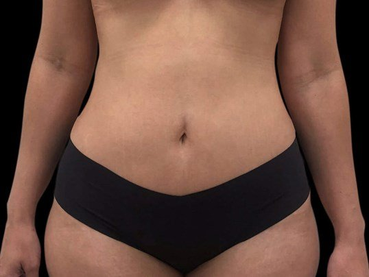Abdominoplasty with Renuvion After