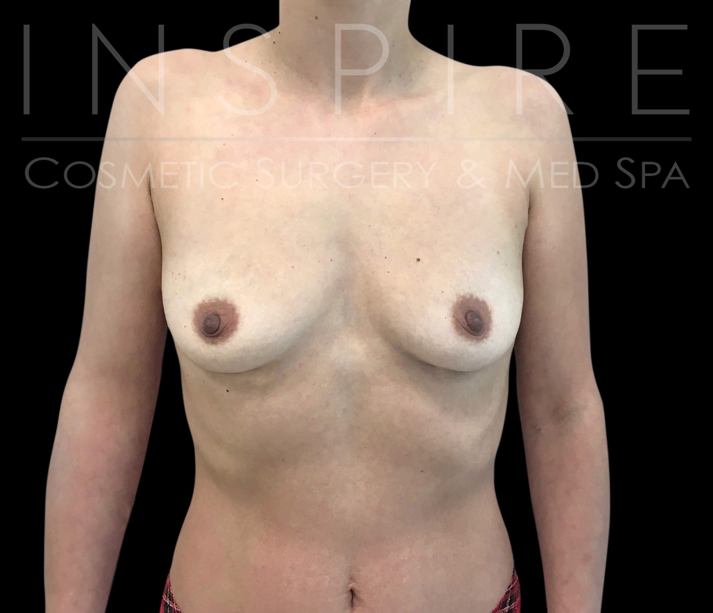 Breast Augmentation 300CC Before