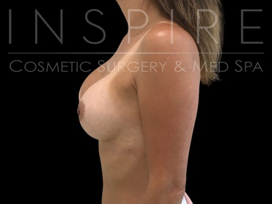 Breast Augmentation 300CC After