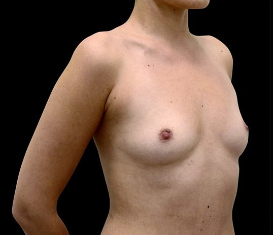 Breast Augmentation 304cc Before